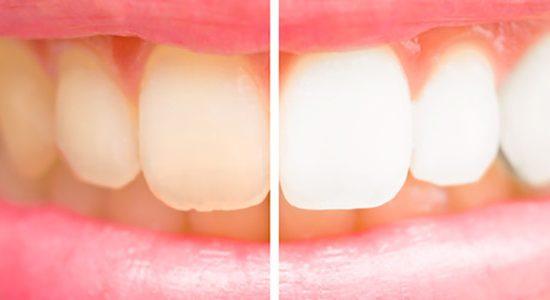 Zahnaufhellung mit Bleaching oder Veneers