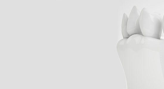 Implantate Kronach